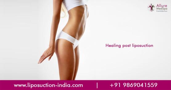 Liposuction Surgery in Mumbai, India