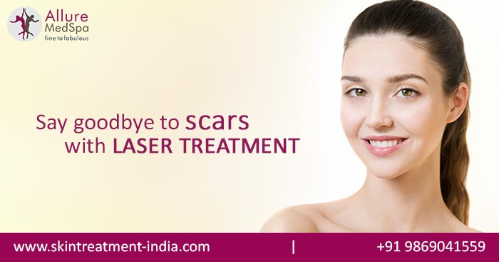 Laser Acne Scar Removal Treatment in Mumbai, India
