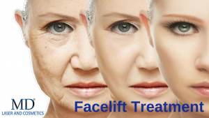 Facelift Treatment
