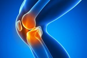 260817050551knee-arthritis