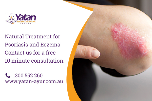 natural treatment psoriasis sydney