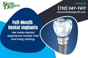 Full Dental Implants