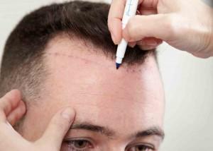 best-hair-transplant-clinic