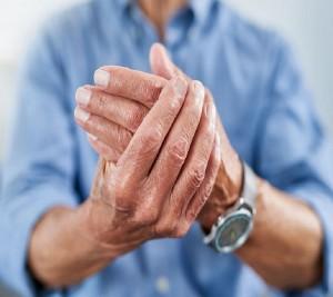arthritisMyths-1164168739-770x533-1